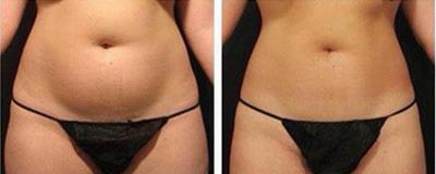Amincissement abdomen